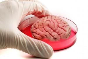 Ученые вырастили в чашке Петри мини-мозг